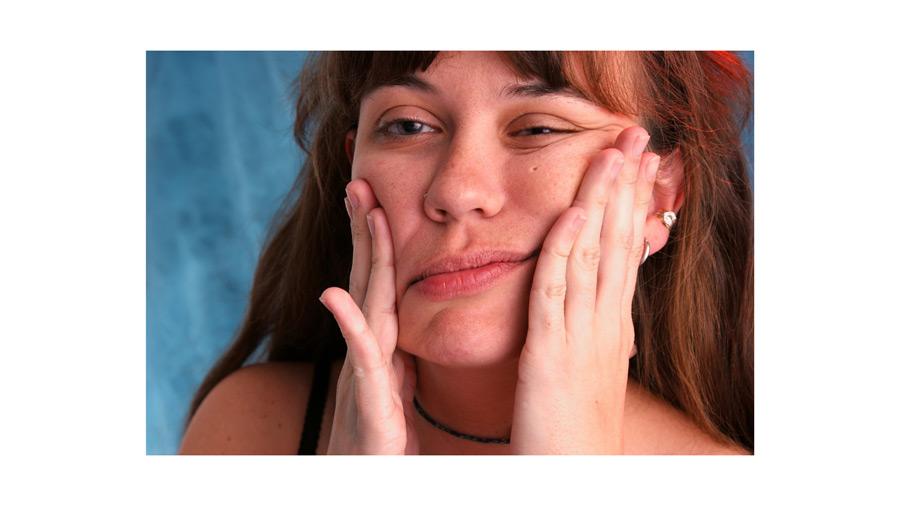 Paraliza facijalnog nerva