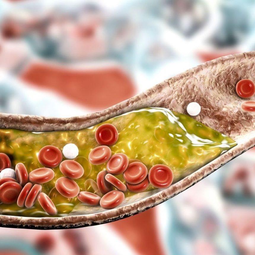 Ateroskleroza i moždani udar