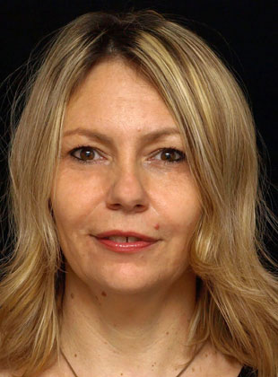 Prof. dr Ksenija Gebauer-Bukurov, deč. neurolog, klinički neurofiziolog i epileptolog
