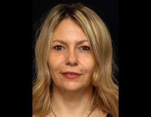 Prof.dr sci.med. Ksenija Gebauer-Bukurov